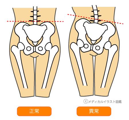 http://medical.i-illust.com/picsdb/20130808172556.png