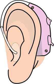 補聴器(装着図)